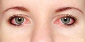 نکاتی که در آرایش چشم های حساس باید بدانید