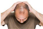 بهترین روش های رشد مو و جلوگیری از ریزش مو